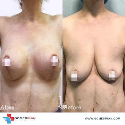 breast lift before and after Iran