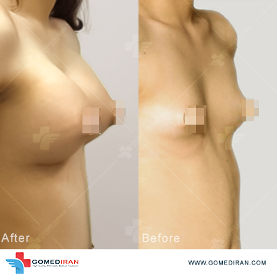 breast implant before and after n iran