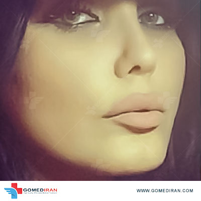 rhinoplasty before and after in iran