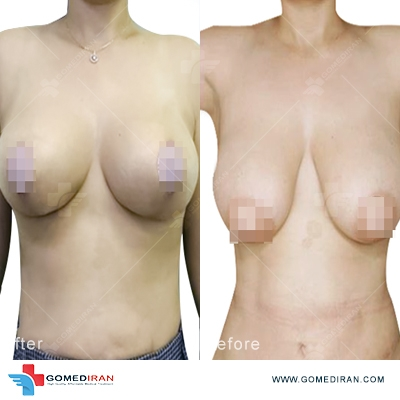 breast lift surgery in Iran gallery