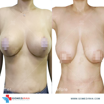 breast implant before and after in iran