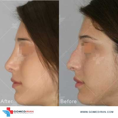 Dr. Farhood Goravanchi Before and afters