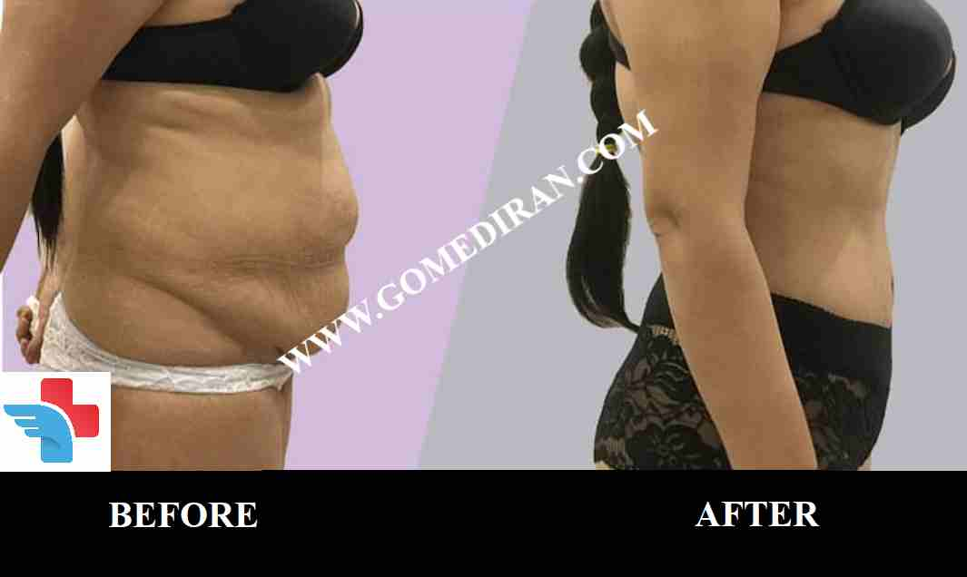 Tummy tuck surgery before and after in Iran