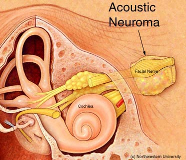 acoustic neuroma in iran