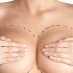 breast enlargement in Iran