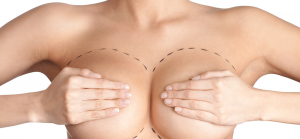breast enlargement in Iran