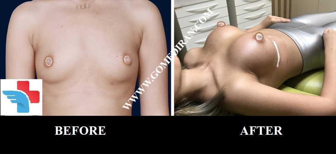Breast augmentation surgery before and after in Iran