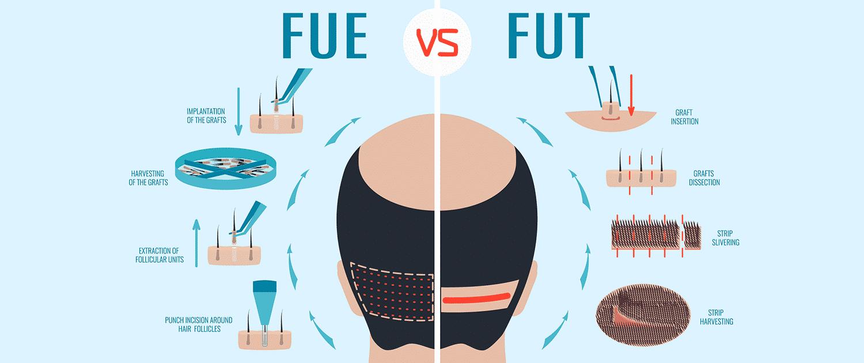 FUE hair transplant in Iran