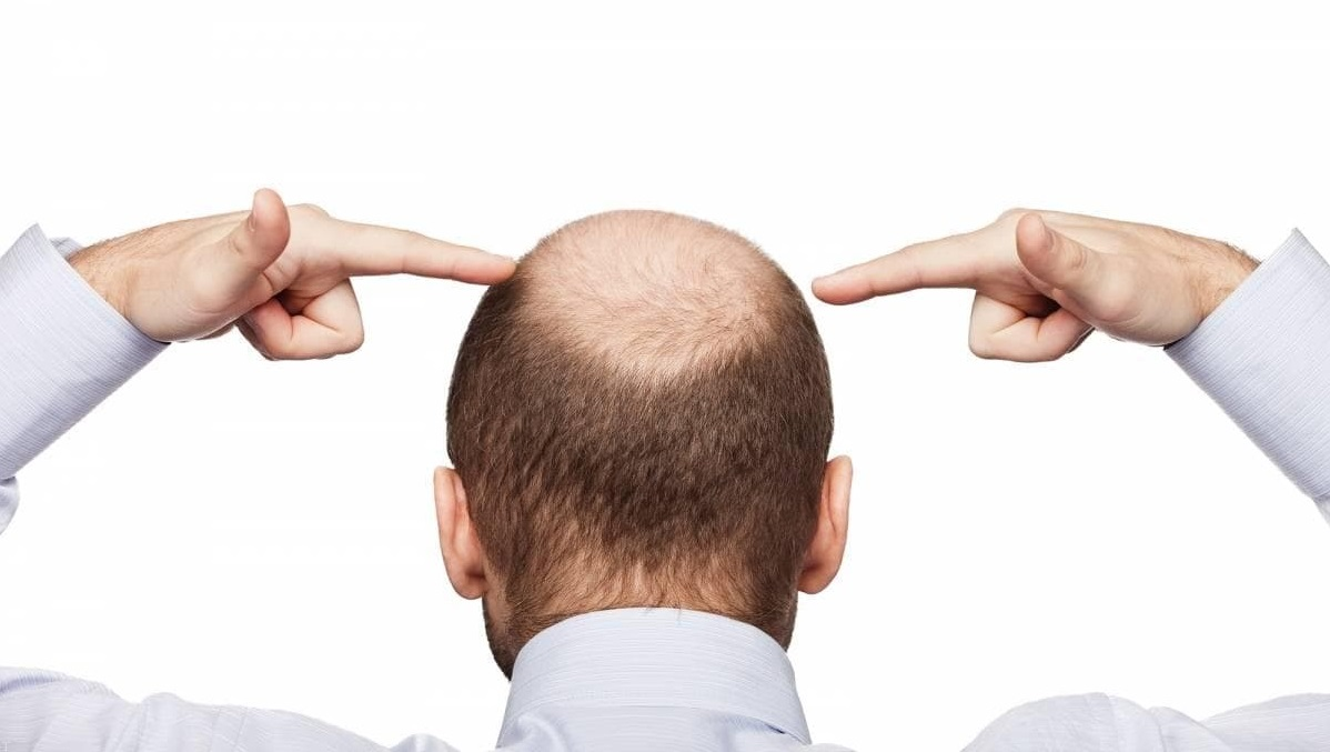 8 Things to Know About Hair transplant