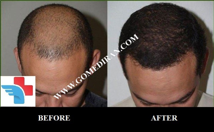 Hair transplant in Iran picture