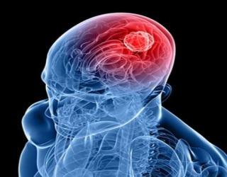 meningioma in iran