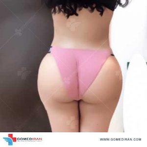 brazilian butt lift in Iran