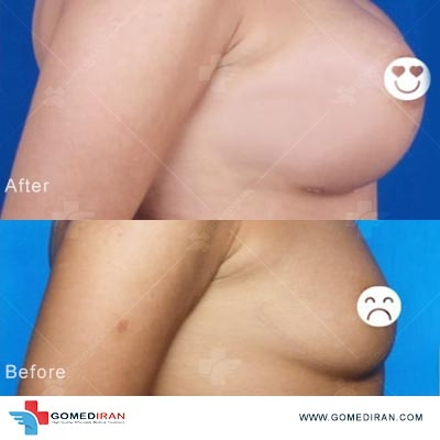 breast implan surgery in Iran