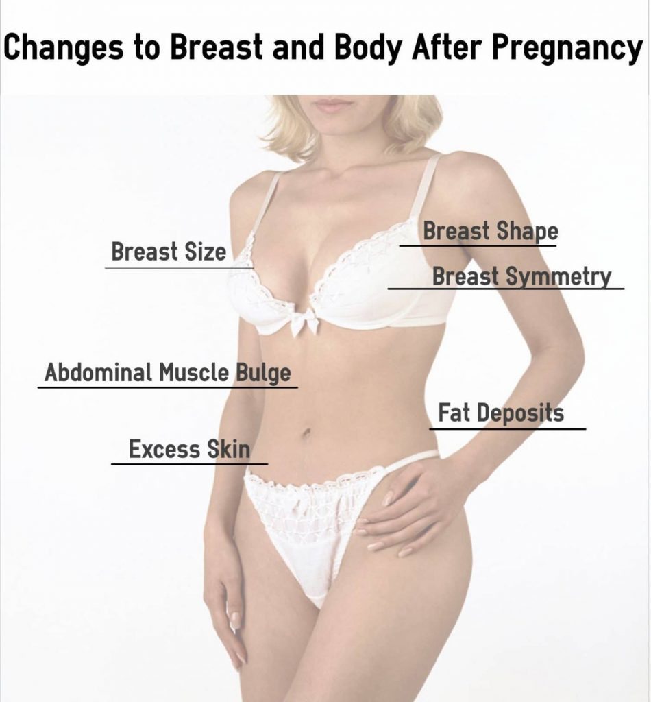 changes to body after pregnancy