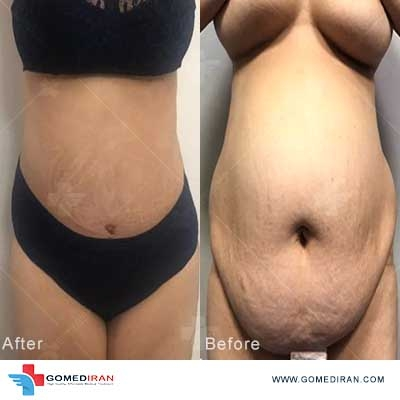 tummy tuck before and after in iran