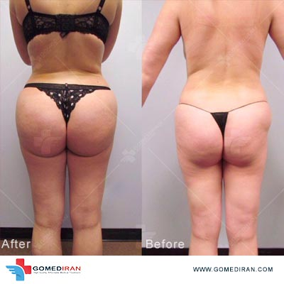 Brazilian Butt Lift before and after in iran