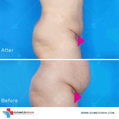 tummy tuck surgery in Iran gallery