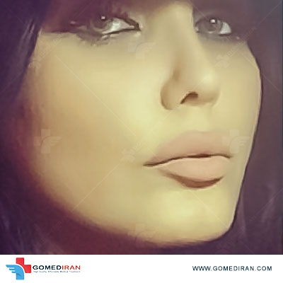 rhinoplasty before and after Dr yahyavi