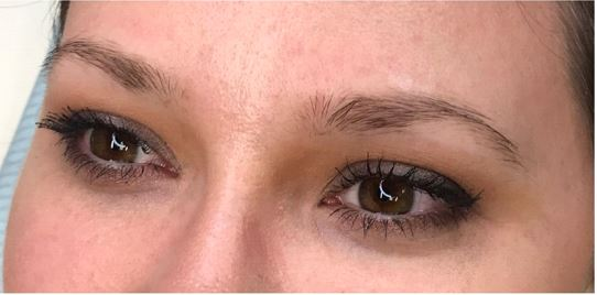 Eyebrow transplant in Iran before and after