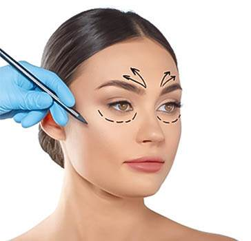 Forehead lift surgery in Iran