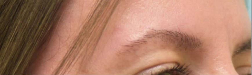Eyebrow in Iran before and after
