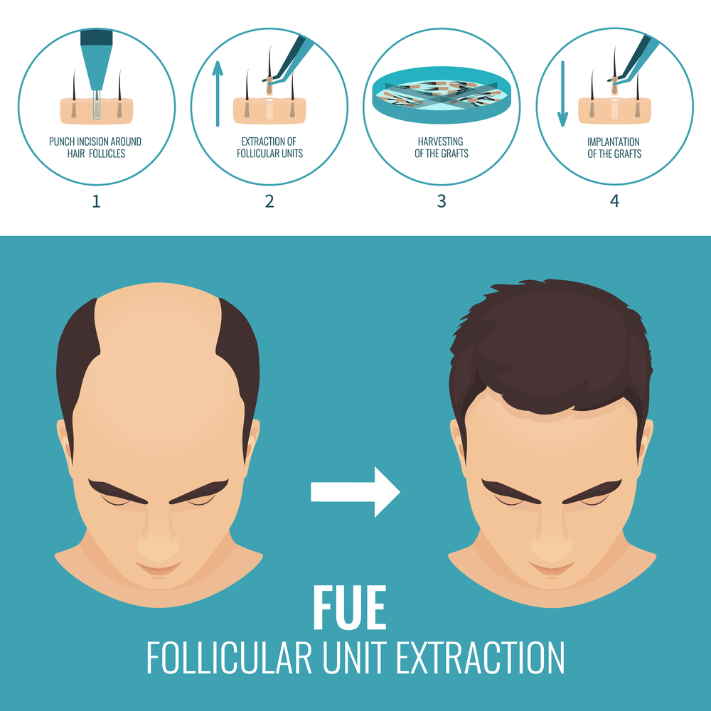 fue method in Iran in summary