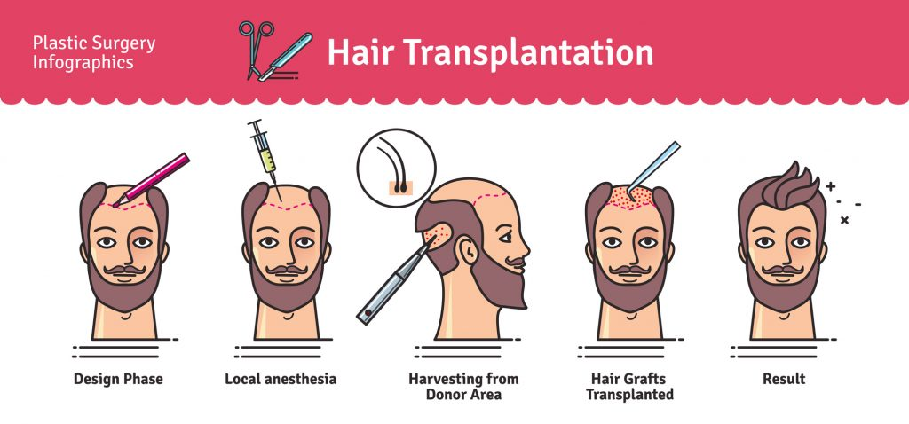 hair transplant methods in Iran