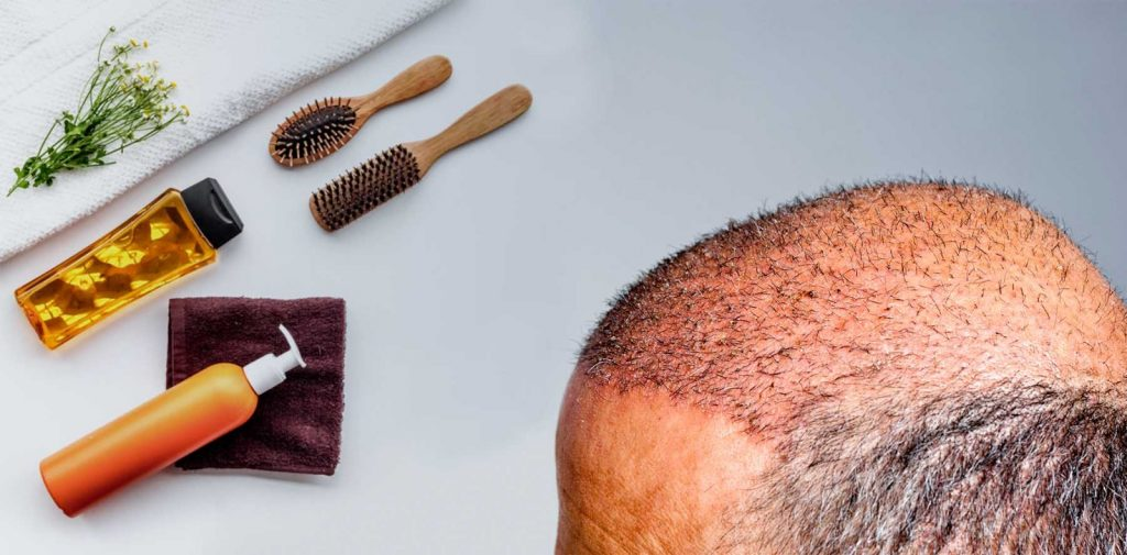hair transplant in Iran aftercare