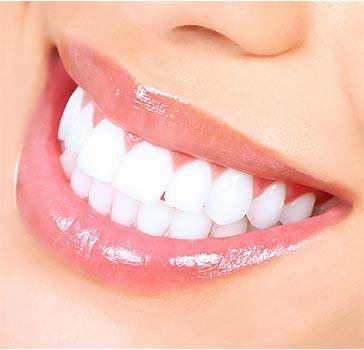 Hollywood smile surgery in Iran