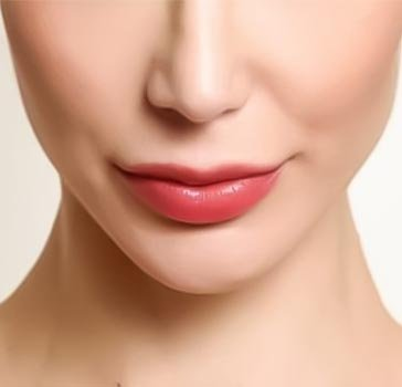 Lip lift surgery in Iran