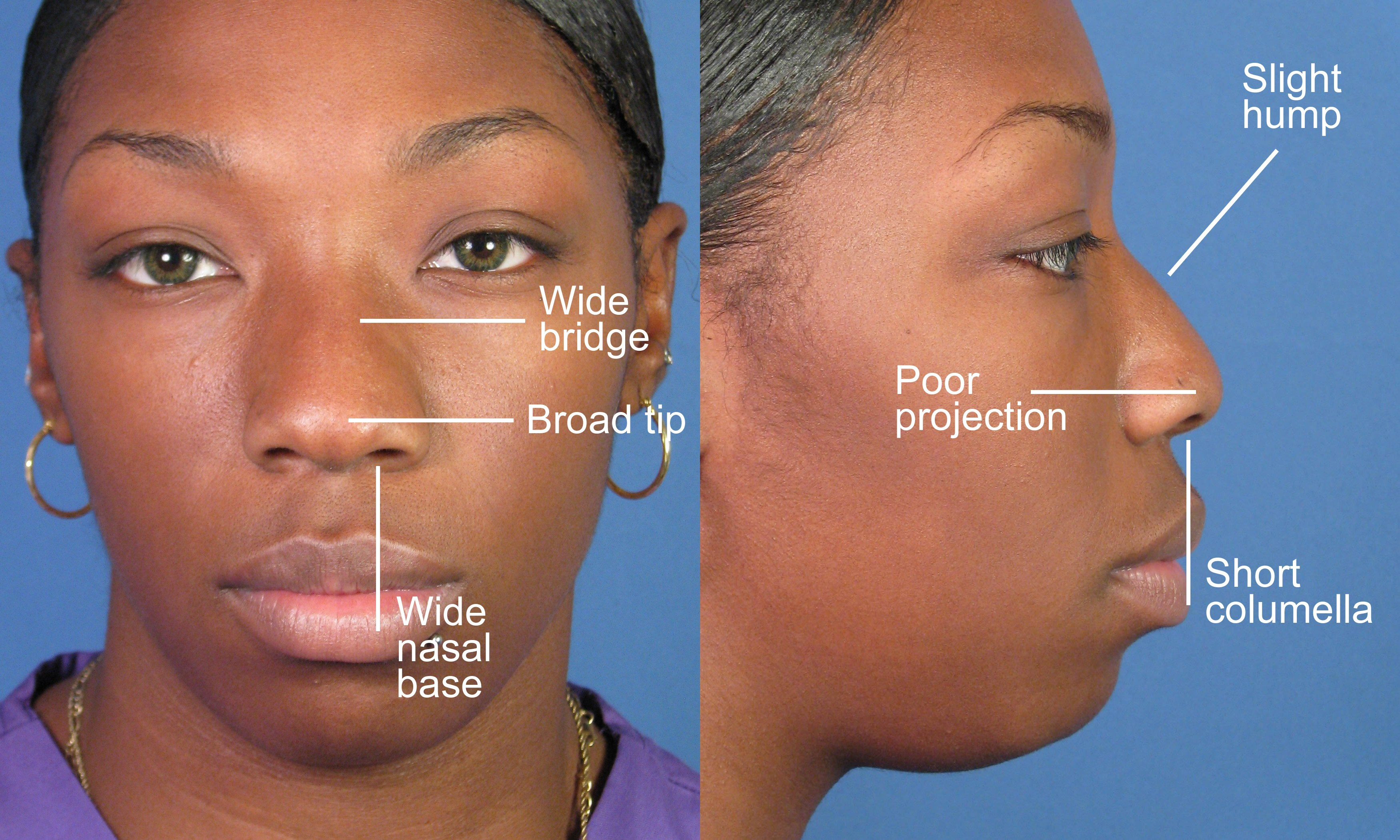 African rhinoplasty in Iran