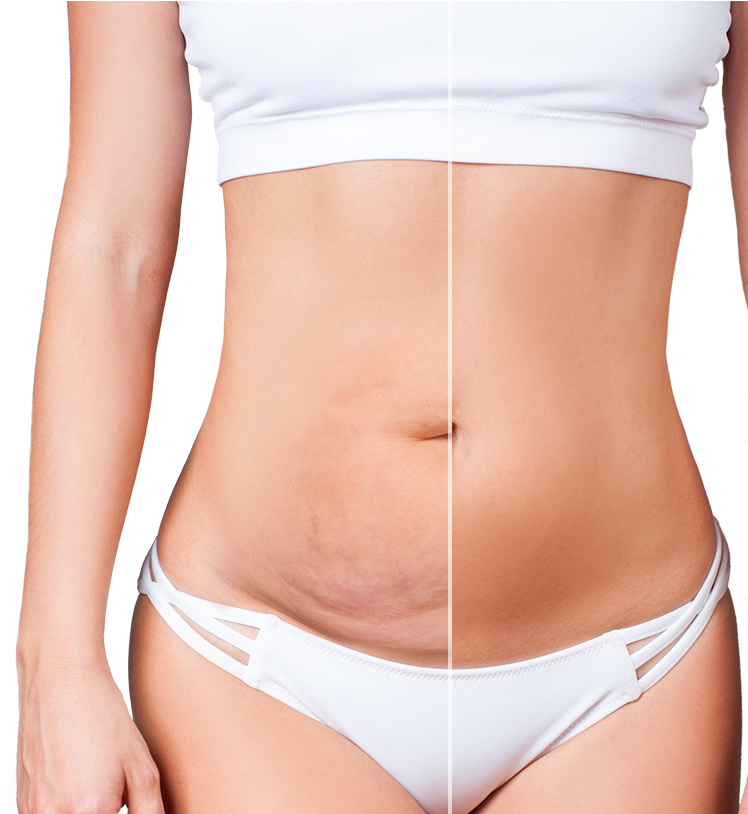 mini tummy tuck after weight loss surgery