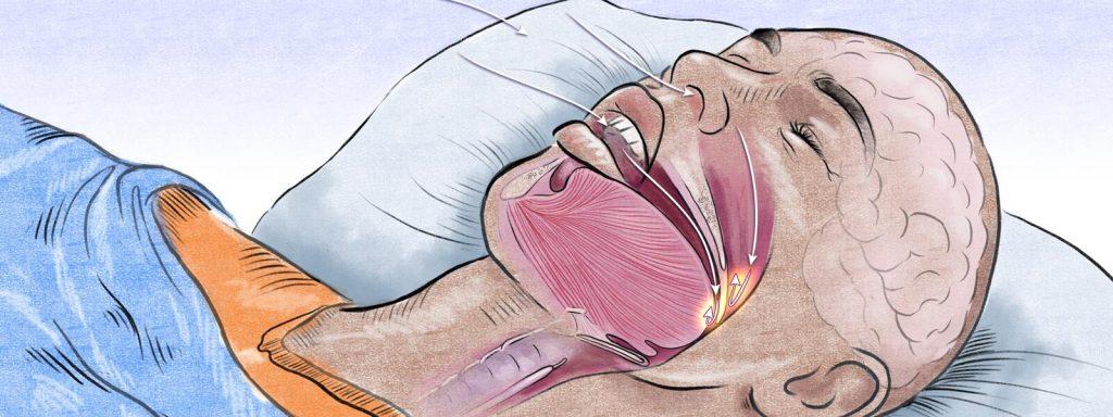 sleap apnea treatment-septoplasty