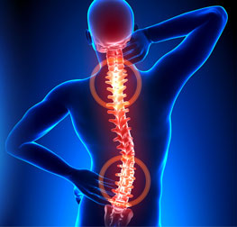 spinal canal stenosis in iran