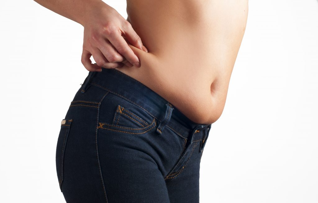 weight loss surgery or tummy tuck